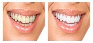 Blanchiment des dents garanti en une semaine