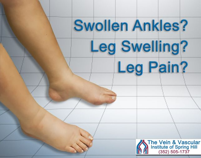 Venous insufficiency is a progressive vein disease that continues to worsen with time and causes symptoms such as:  - leg pain - leg cramps - restless legs at night - varicose veins in the legs - heaviness, tired and achy legs - swelling of the legs and ankles  Learn more at: https://www.veinandvascularofspringhill.com/service/venous-insufficiency-treatment/  #LegPainSpringHillFL #SpringHillVeinDisease #LegSwellingSpringHillFL #SwollenLegsSpringHillFL