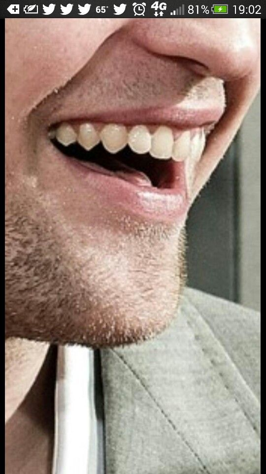 Remarkable phrase Kristen stewart teeth with