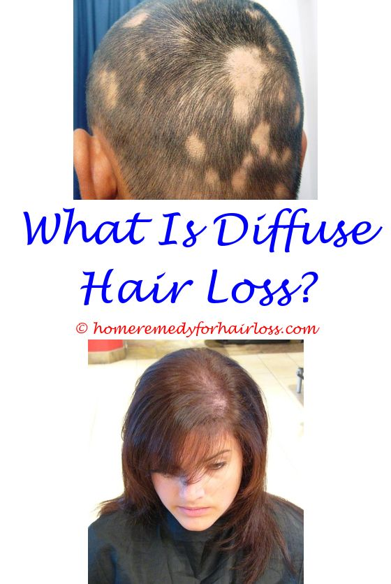 can cat vaccinations cause hair loss at site of injection - multivitamin tablets for hair loss in india.sebum shampoo hair loss cold hair loss hair loss in maine coon cats 8364785100