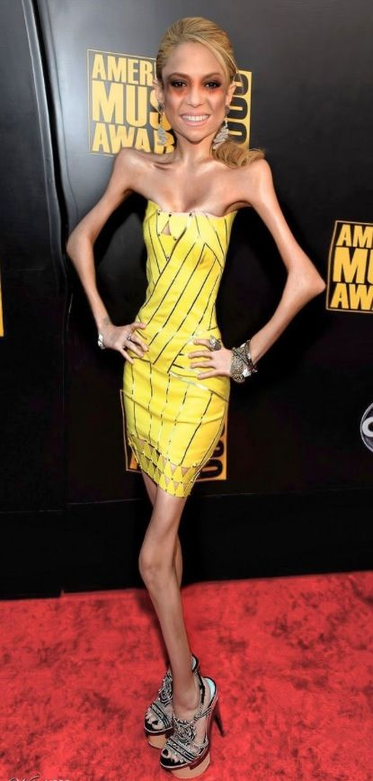 Do You Think This Dress Makes Me Look Fat? - Anorexia at American Music Awards  ---- best hilarious jokes funny pictures walmart humor fail