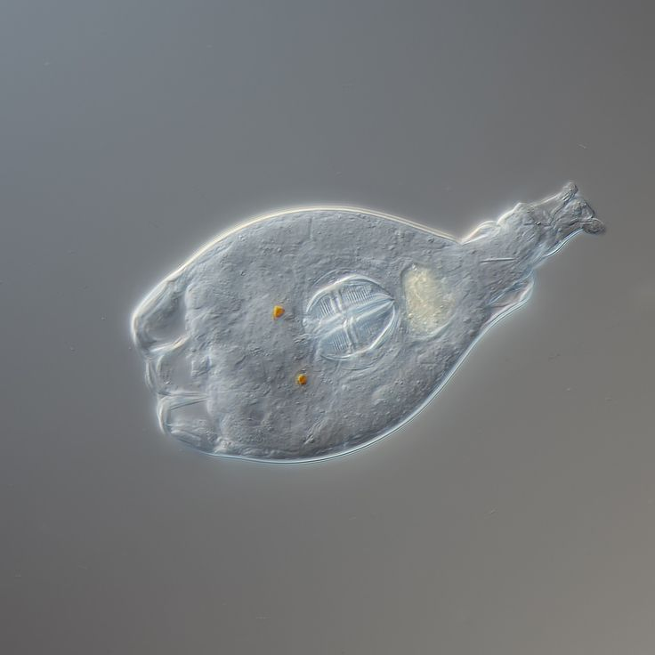 www.photomacrography.net :: View topic - Rotifer