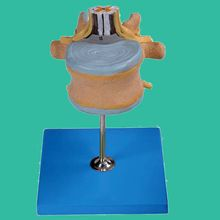 Lumbar Vertebra with Spinal Cord and Cauda Equina Nerve Model //Price: $US $68.70 & FREE Shipping //