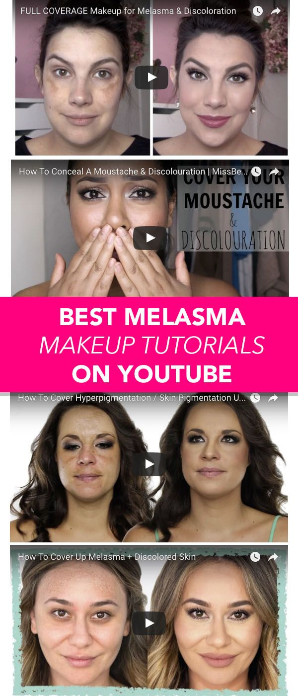 Check out these amazing youtube tutorials for the best way to cover your hyperpigmentation, melasma mustache or brown spots on your face.