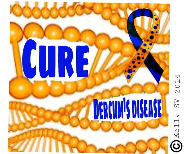 Dercum's disease awareness