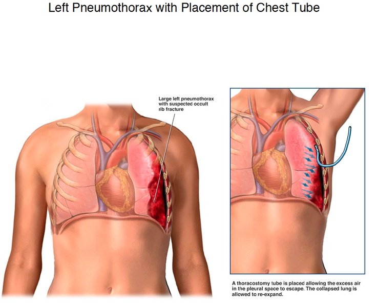 Pneumothorax as related to Cardiac tamponade - Pictures