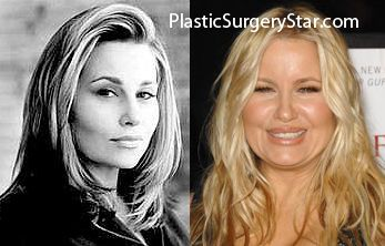 Jennifer Coolidge Plastic Surgery