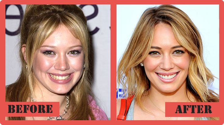 Hilary Duff Plastic Surgery Before And After Hilary Duff Plastic Surgery #HilaryDuffplasticsurgery #HilaryDuff #celebritypost