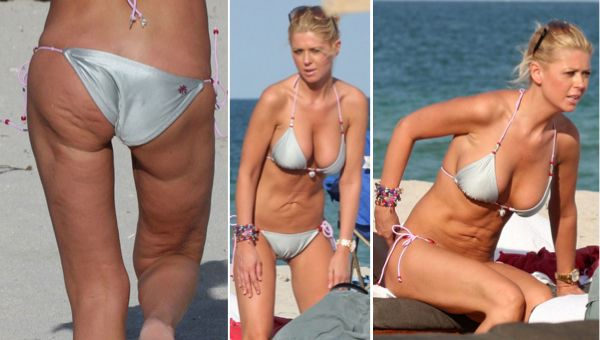 Chatter Busy: Tara Reid Botched Plastic Surgery