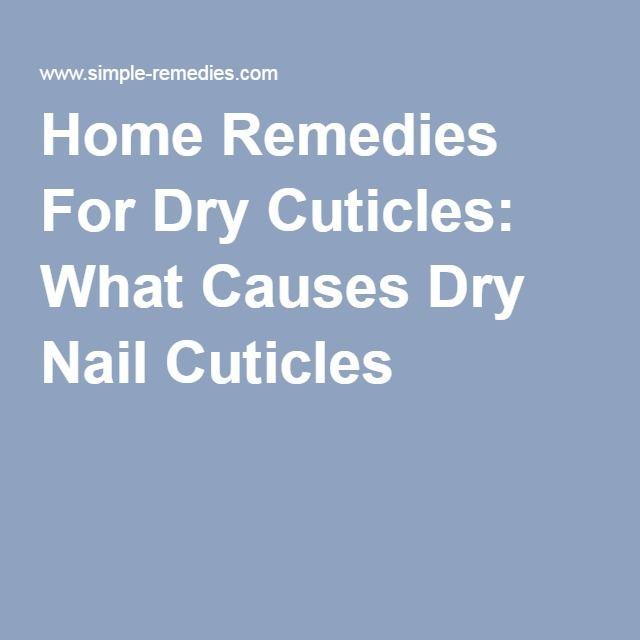 25 beste idee n over droge nagelriemen op pinterest nagelriemen verzorgen nagelriem - Easy home remedy strengthen dry brittle nails ...