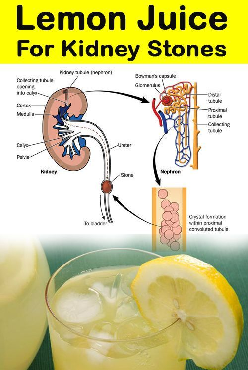 Cure Kidney Stones Natural Remedies