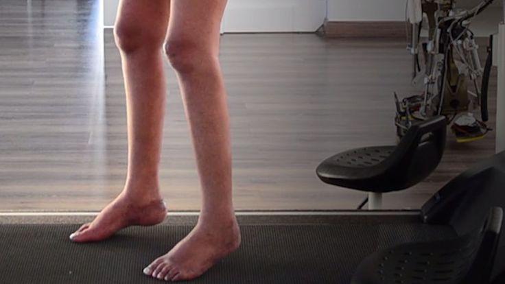 これまで脊髄損傷などによって下半身不随になった場合、回復は不可能と考えれてきました。しかし、最近の研究では、脳にチップを埋め込むことで脊髄をバイパスして信号を脳に送ることで腕を動かせるようになる四