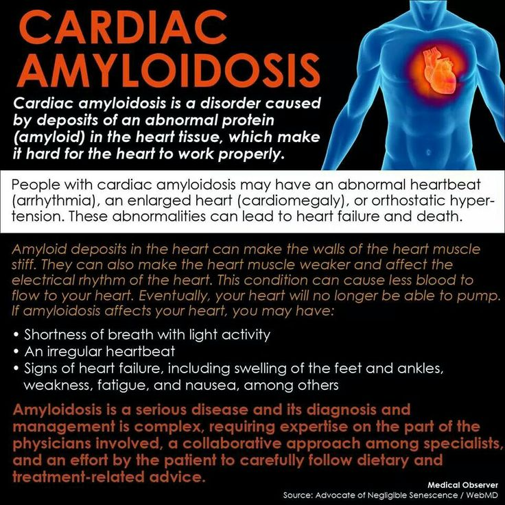 Cardiac Amyloidosis Natural Treatment