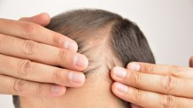 Besoin d'un remède contre la calvitie ? Ces scientifiques découvrent des cellules immunitaires qui stimulent la croissance des cheveux !