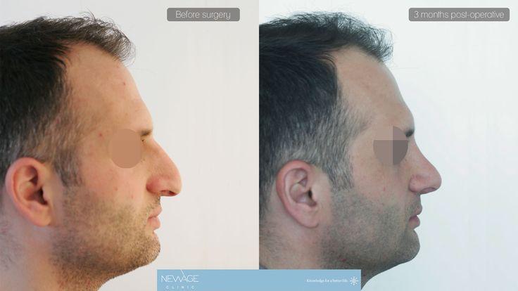 Rinoplastica - Newage  #rinoplastica #chirurgiaplastica #estetica #bellezza