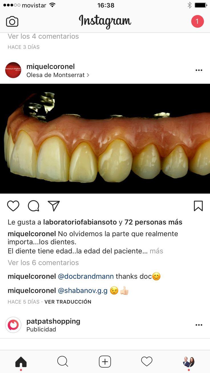 Beste Zahn Okklusale Anatomie Fotos - Menschliche Anatomie Bilder ...