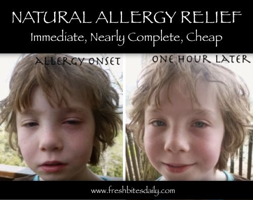 Best Natural Allergy Relief That's So Complete & Immediate, It May Blow You Away!...http://homestead-and-survival.com/best-natural-allergy-relief-thats-so-complete-immediate-it-may-blow-you-away/