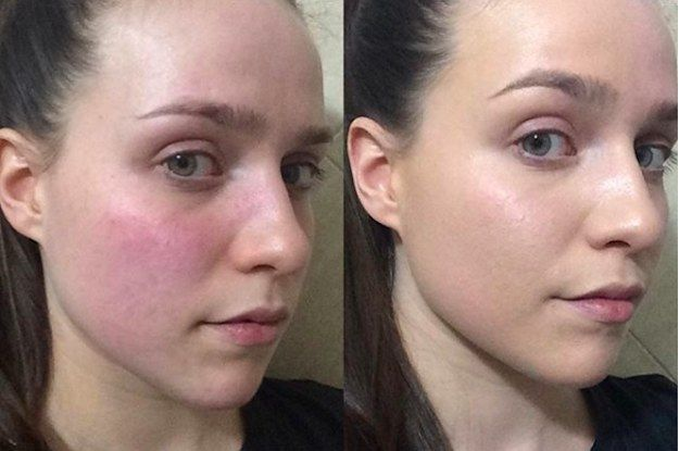 These 8 Products Work Wonders On Red Sensitive Skin Splotchy Skin Red Blotchy Skin Skin Redness