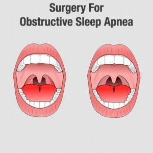 Various Methods Of #Surgery for #ObstructiveSleepApnea -   #ObstructiveSleepApneaSurgery #OSATreatment #SleepDisorders
