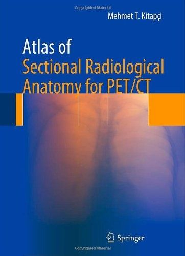 I'm selling cheap ebook -- Atlas of Sectional Radiological Anatomy for PET/CT -- $50
