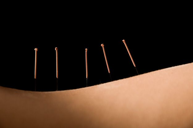 Acupuncture and Herbs Surpass Antiviral Drug For Shingles    Shingles responds better to TCM than to acyclovir.