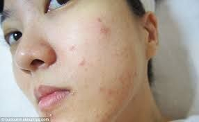 Medicine For Allergies Breakouts - http://askthenurseexpert.com/what-is-the-best-allergy-medicine-for-people-who-have-breakouts-when-their-allergies-act-up