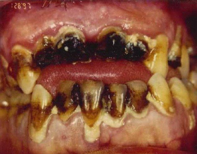More gross: this is what happens when you don't go to the dentist AND you use crystal meth