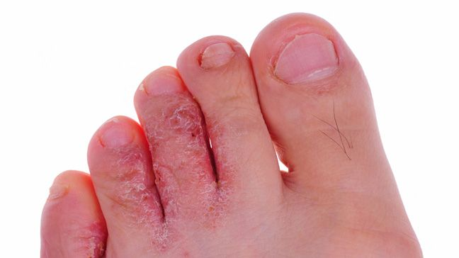 Cure athletes foot is by using some natural skin soothing gels such as aloe vera.Athletes foot cures will relieve fungal injury quickly and without any hassle.