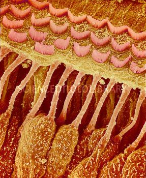 SEM of hair cells (brown/ pink) in a healthy inner ear. The inner ear converts sound waves into nerve impulses by stimulation of stereocilia (pink, upper frame), projections at the ends of the hair cells. Waves entering the inner ear displace the fluid that surrounds the stereocilia, causing the stereocilia to bend. This bending causes the hair cells to release neurotransmitter chemicals, which generate nerve impulses that travel to the brain along the auditory nerve.