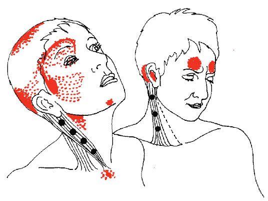Fibromyalgia Pain Spots