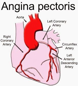 angina pectoris care plan Care guide for angina includes: possible causes, signs and symptoms, standard treatment options and means of care and support.