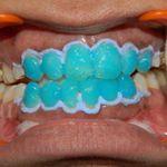 Dr. Swatee Kulkarni's cosmetic dentistry services in Kalyan offers affordable teeth whitening, teeth cleaning, teeth polishing services. To know more visit http://www.swateekulkarniorthodontist.com/treatments/cosmetic-dentistry-in-kalyan/