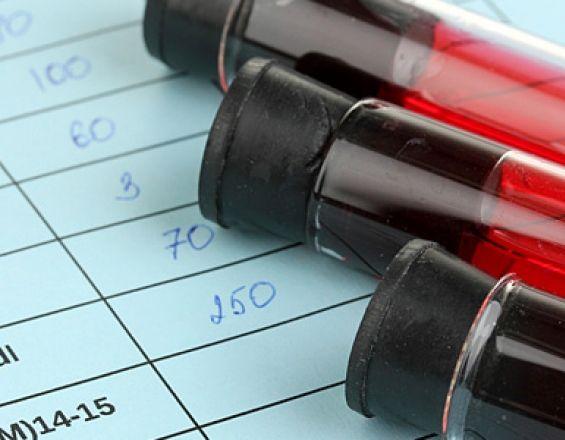 Τι σημαίνουν τα όρια στην εξέταση αίματος – Ποιες παθήσεις υποδεικνύουν | ekriti