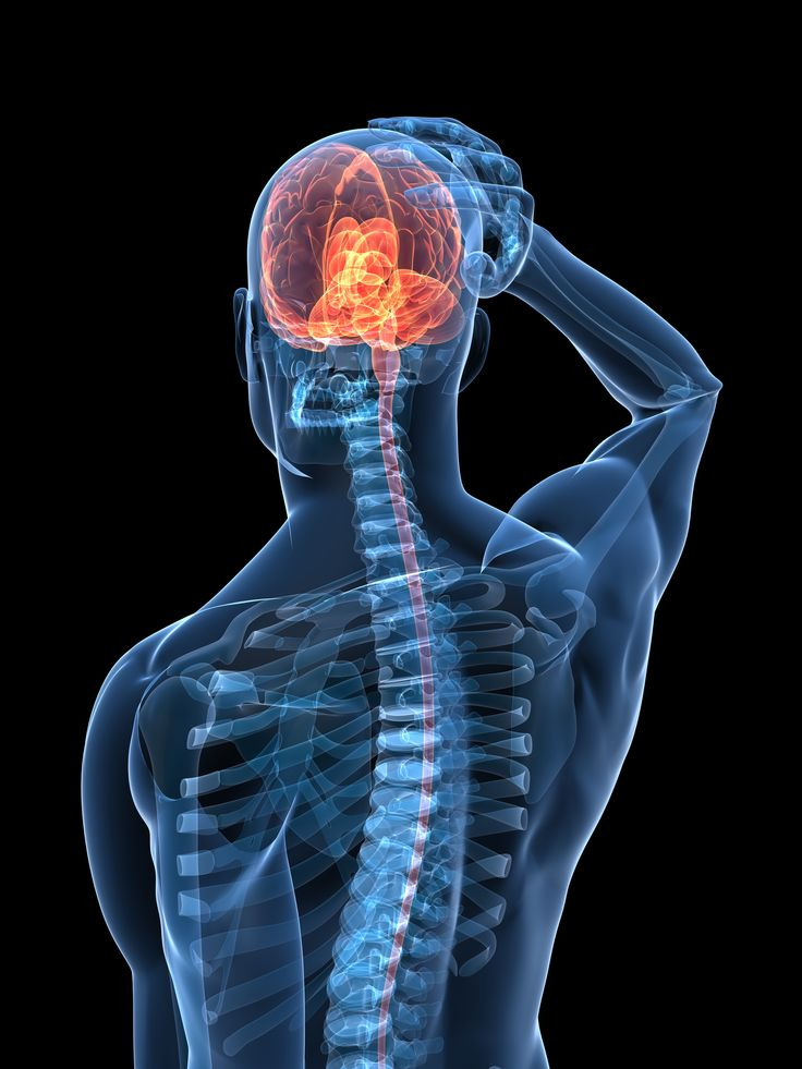 Anzeichen für einen Schlaganfall können auch völlig unbemerkt verlaufen. Selbst ein vermeintlich harmloser Stichschmerz im Kopf kann ein verstecktes Schlaganfall-Anzeichen für den Infarkt im Gehirn sein.