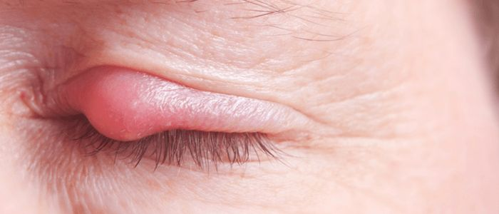 How To Get Rid Of A Stye, Treatment, Cure