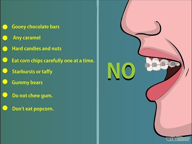 Things To Avoid When Wearing Braces Tips Cleaning Tips