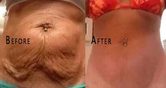 Stomach became saggy after pregnancy/ weight loss? This will firm up the skin back to normal - Glowpink-Many women deal with saggy stomach skin after pregnancy or weight loss. It can be really annoying. Even if you exercise hard, it is very difficult to get rid of the saggy skin. In this article, we present you a natural remedy that can help you smooth out the annoying sagging skin. It is very …