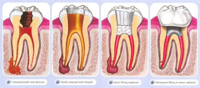 The method for getting rid of an impacted tooth is identified by the number of roots it has and it's area under your gums. Patient sedation is frequently made use of along with the application of an anesthesia to the affected location. https://www.flickr.com/photos/126055288@N05
