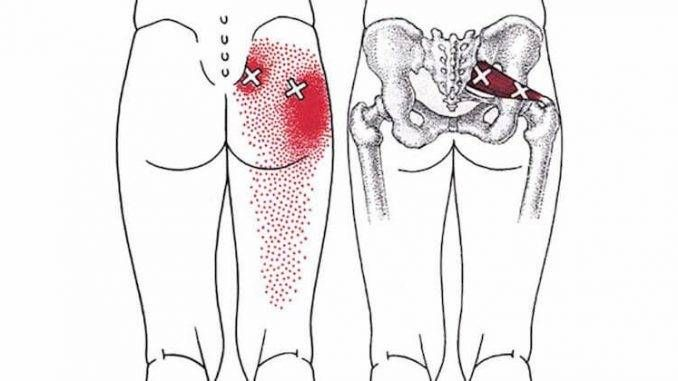 How To Get A Deep Piriformis Stretch To Get Rid of Sciatica, Hip & Lower Back Pain – WW Recipes & Tips.