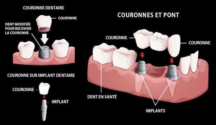 Les traitements dentaires offrent plusieurs techniques permettant de préserver la santé des dents. La couronne est l'une de ses techniques. Il s'agit d'une prothèse dentaire qui protège et recouvre une dent vivante ou non afin de maintenir ses fonctions et son apparence.