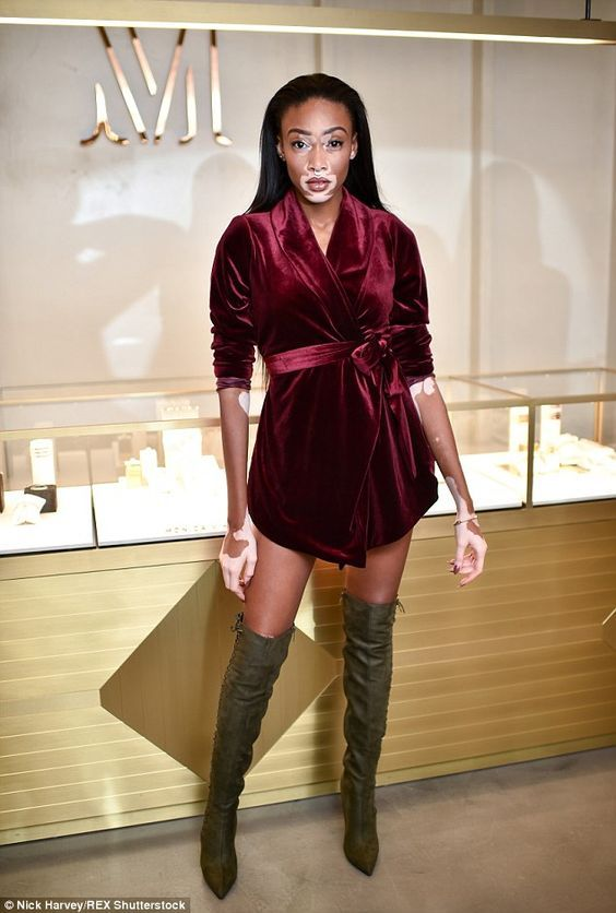 Leggy lady: Winnie Harlow, a top model with vitiligo skin condition, looked sensational wh...: