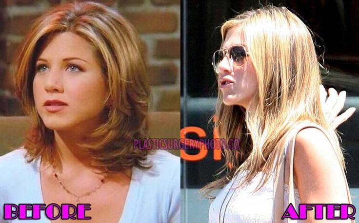 Jennifer Aniston Plastic Surgery Lips Before and After Photos