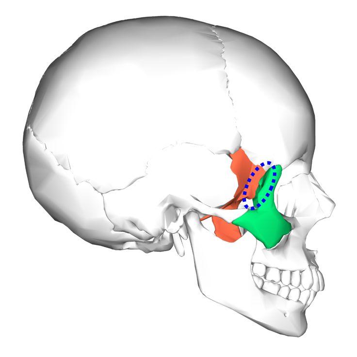 sphenozygomatic suture sphenoid bone zygomatic bone | cranio, Human Body