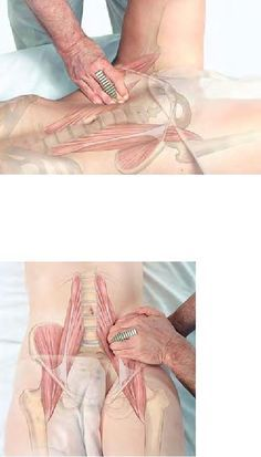 This is your Psoas and it is the reason why you have low back pain! And I know how to treat it effectively!