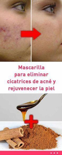 #mascarilla para #eliminar #cicatrices de #acné y #rejuvenecer la #piel #rostro