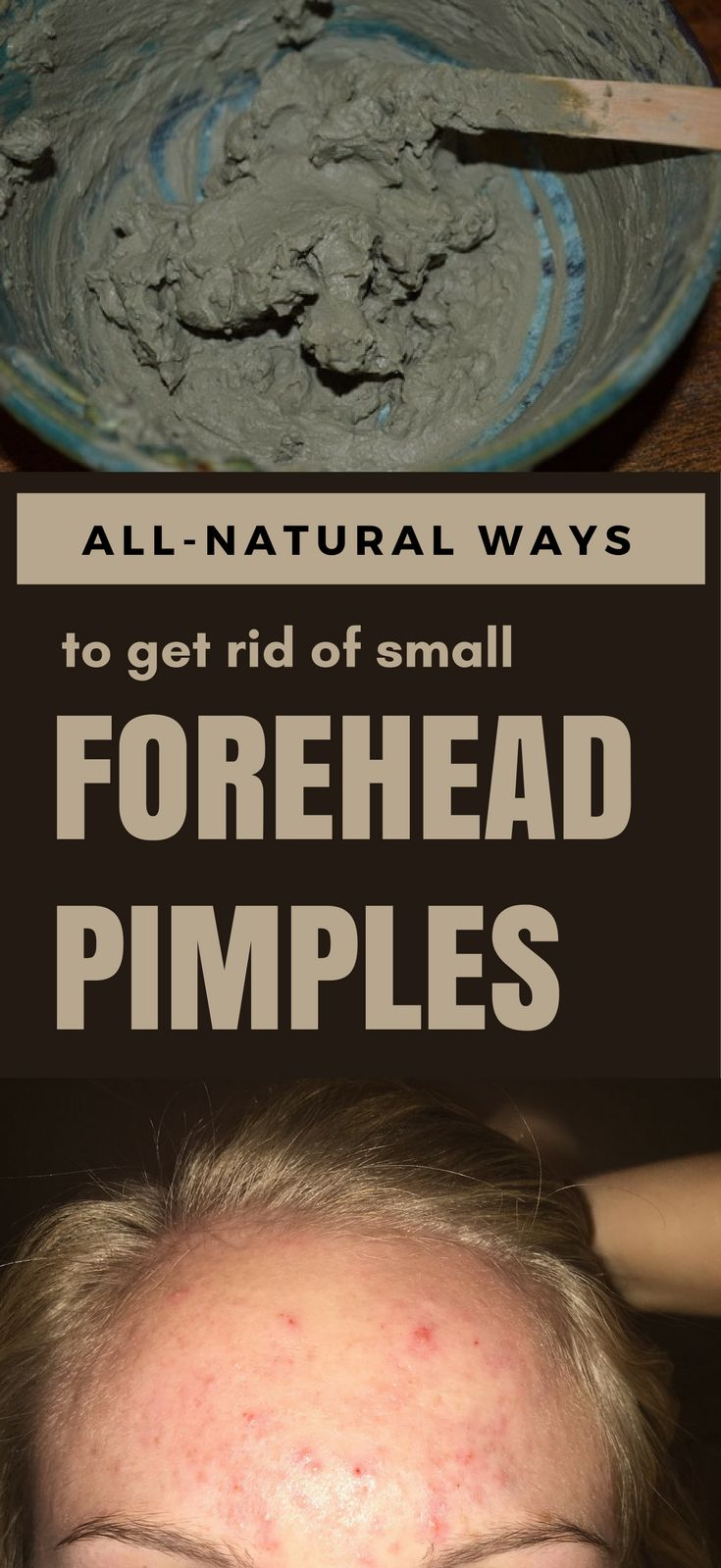 All-Natural Ways To Get Rid Of Small Forehead Pimples – 101Beauty.org