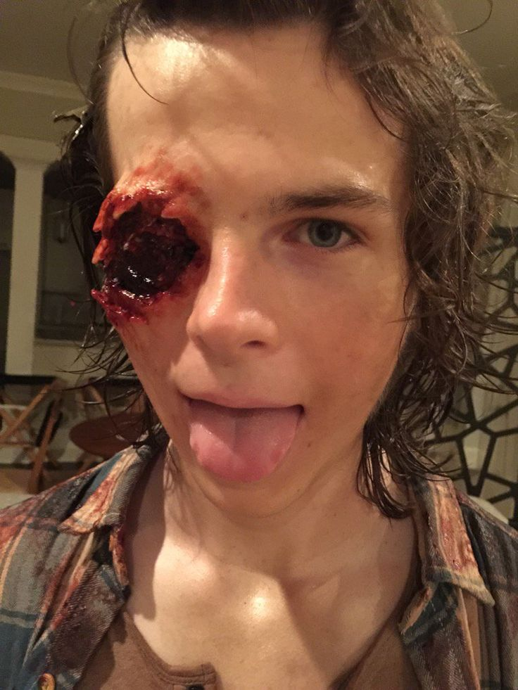 Walking Dead's Chandler Riggs shares grisly snap of prosthetic injury