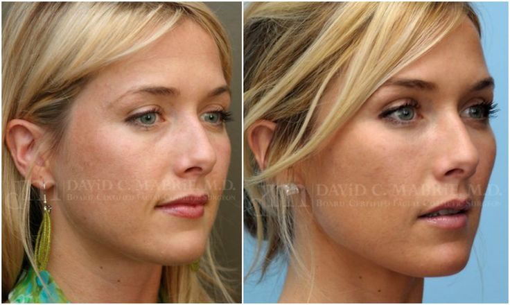 Restylane cheek augmentation & facial reshaping, on the same SF 30y/o patient.