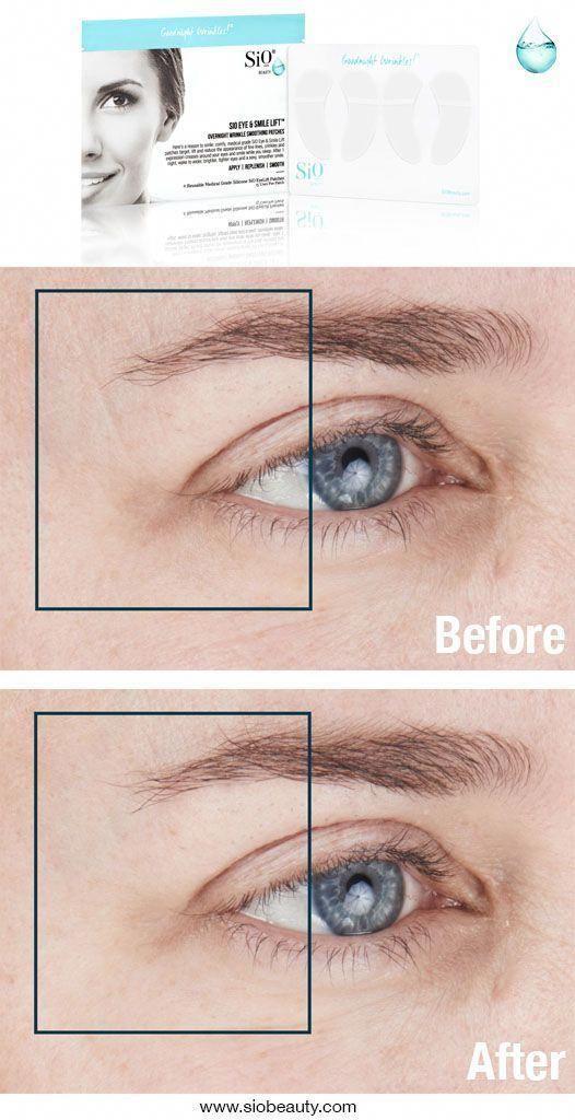 6b73a24731c97c8badc047d86f5caaaf - How To Get Rid Of Eye Wrinkles And Crow S Feet