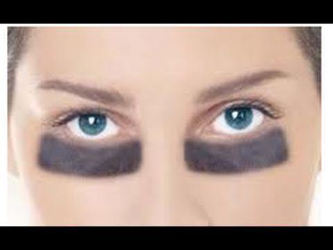 Remedio para ojeras y bolsas de los ojos. Ecodaisy